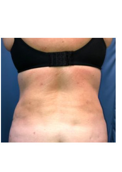 Liposuction of Flanks