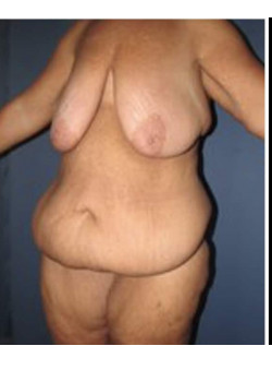 Breast Reduction and Panniculectomy